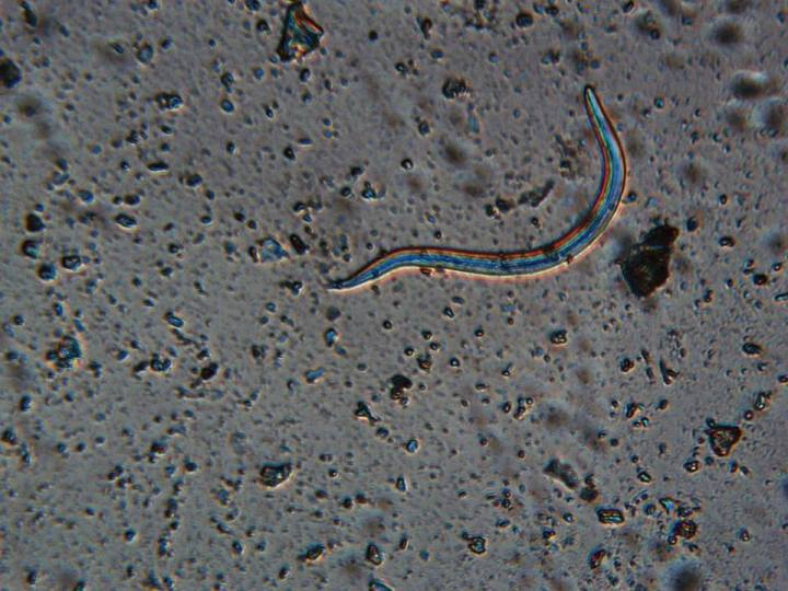 Lungworm in hedgehog poo under microscope credit Whitby Wildlife Rescue
